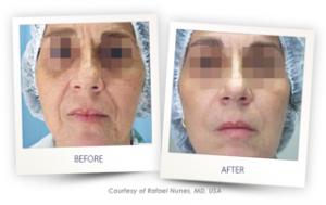 Laser Face Lifting – Cannelle Medispa