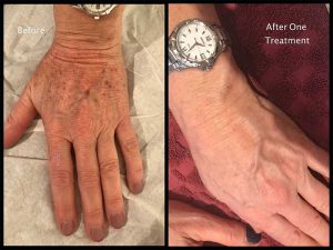 Oxford client after just one treatment