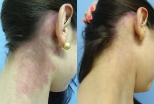 Skin Pigmentation before and after treatment