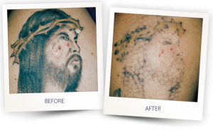 Tattoo laser removal in Oxford