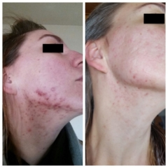 Our client after 3 Chemical Peel treatments and 1 Micro-Needling treatment over a 5 month period