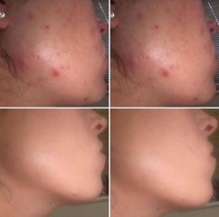 Acne and scaring improved with chemical peel