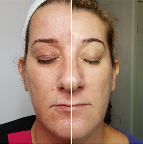 Skin appearance improved by chemical peel