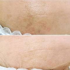Age spots before and after improved by chemical peel