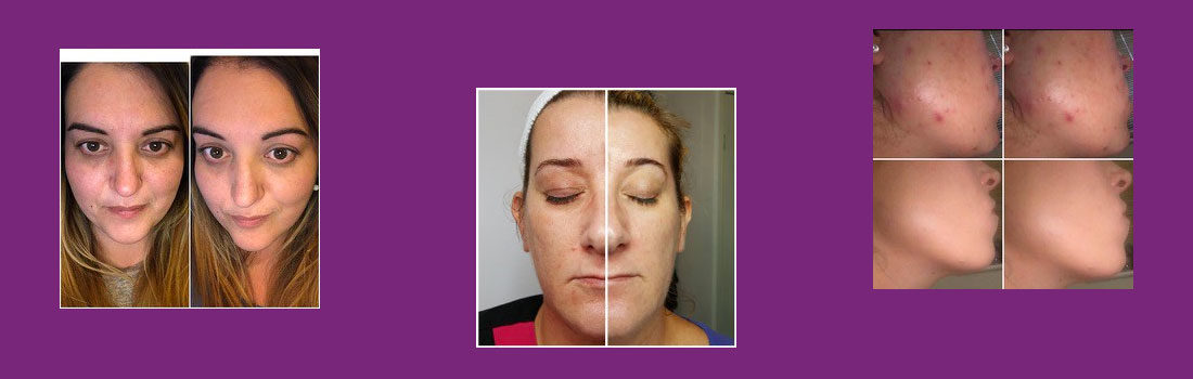 acne-treatment-chemical-peel