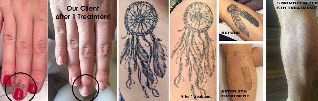 Tattoo Removal Oxford