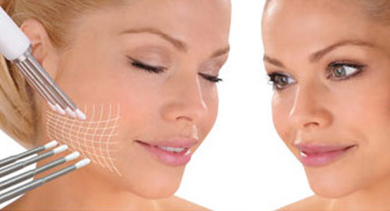 CACI Offer, Oxford, Henley, 2 treatments free with a course of 10 booked