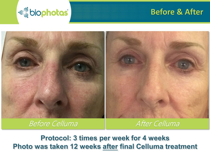 Celluma LED Light Therapy Before and After